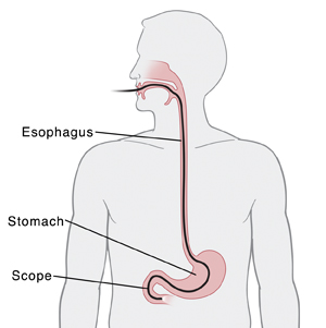 Outline of upper body showing endoscope inserted through mouth to stomach.