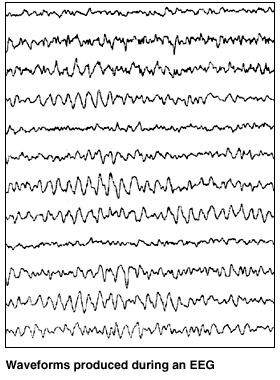 Twelve parallel lines showing normal EEG waveforms. Lines are regular, repeating pattern of small peaks and valleys.