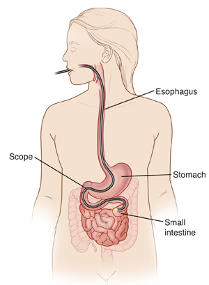 Outline of head and torso showing scope in mouth, esophagus, stomach, and past duodenum into small intestine.