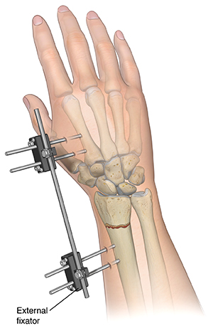 Back view of forearm showing external fixator holding fractured radius in place.