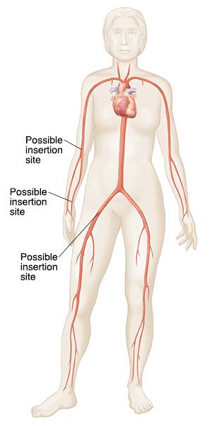 Silhouette of woman showing catheter insertion sites in groin and arm.