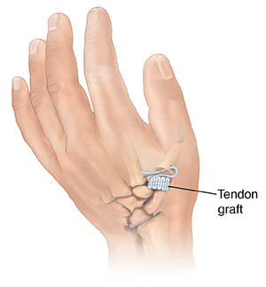 Back view of hand showing ligament graft replacing joint at base of thumb.