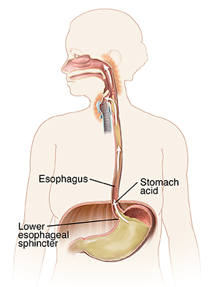 Outline of woman showing mouth, esophagus, and stomach. Arrows show stomach acid flowing up esophagus to irritate back of throat.