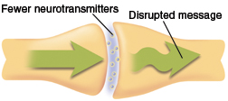 Neurotransmitters sending disrupted message from one neuron to the next.